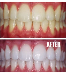 Professional Teeth Whitening And Bleaching In Colorado Springs